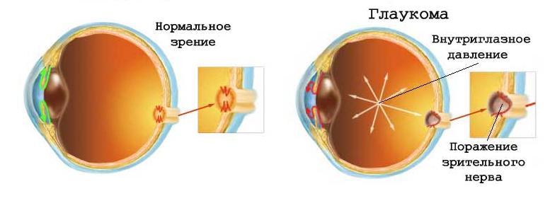glaukoma_lechenie_fitoriya.jpg